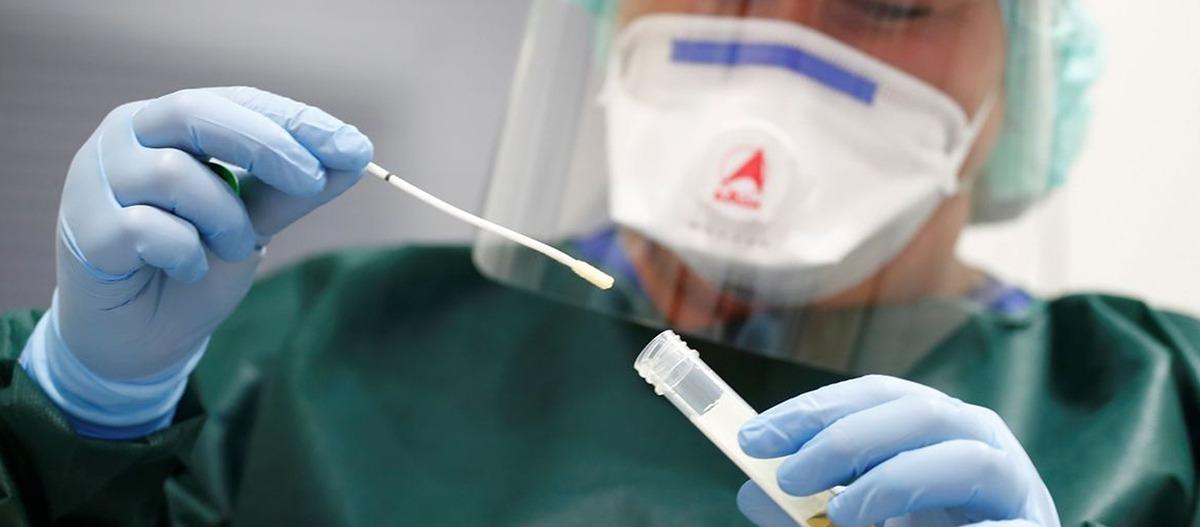 O que deve ser levado em consideração sobre o novo Coronavírus?